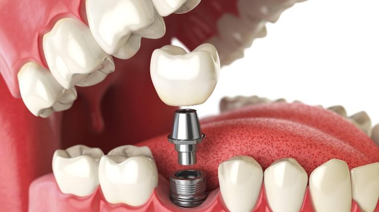 visual depicting how a dental implant is attached to the mouth
